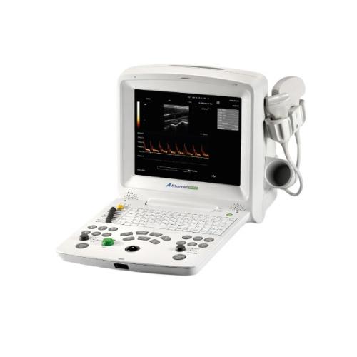 Máy siêu âm xách tay DUS 6000